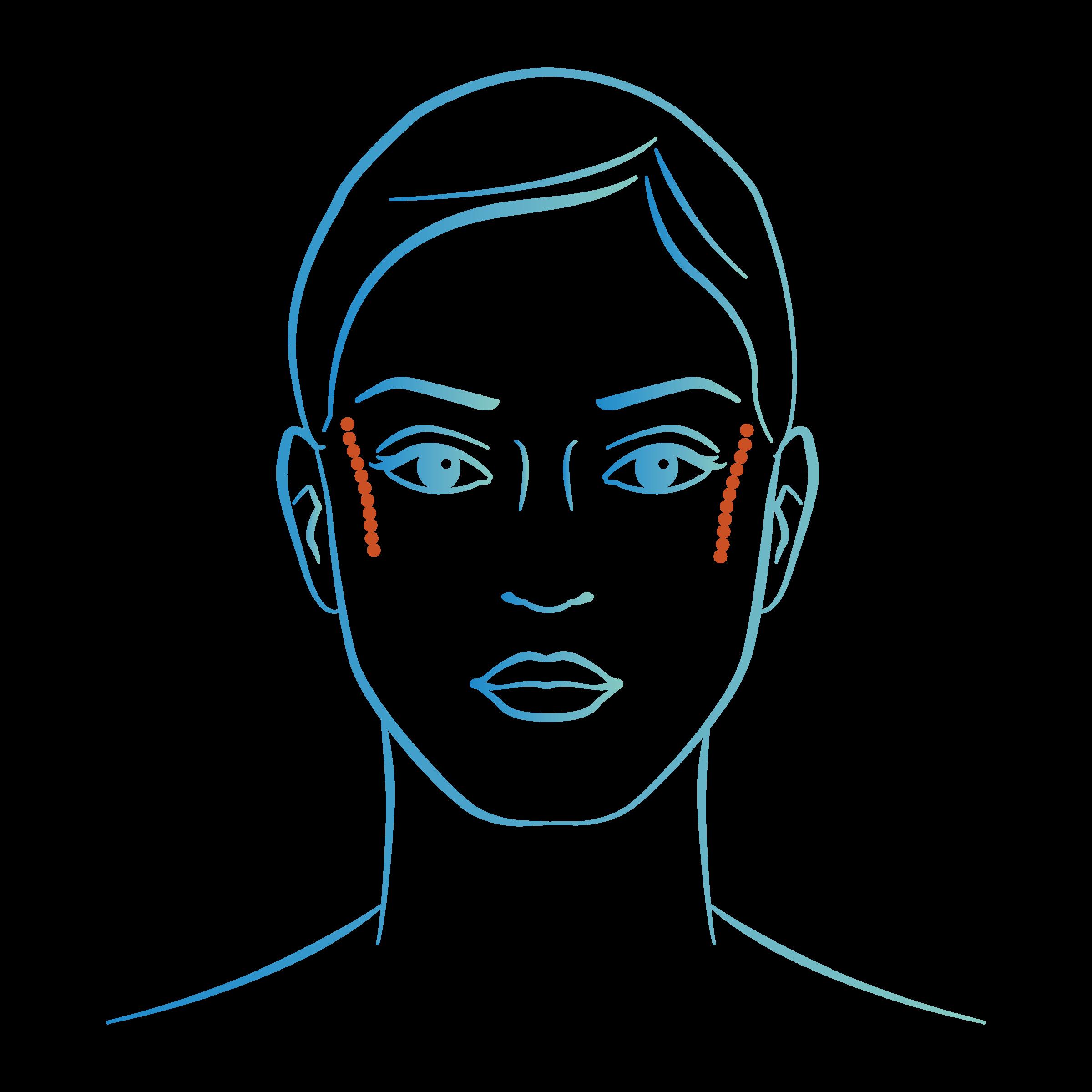 Injections acide hyaluronique ovale du visage : tempes