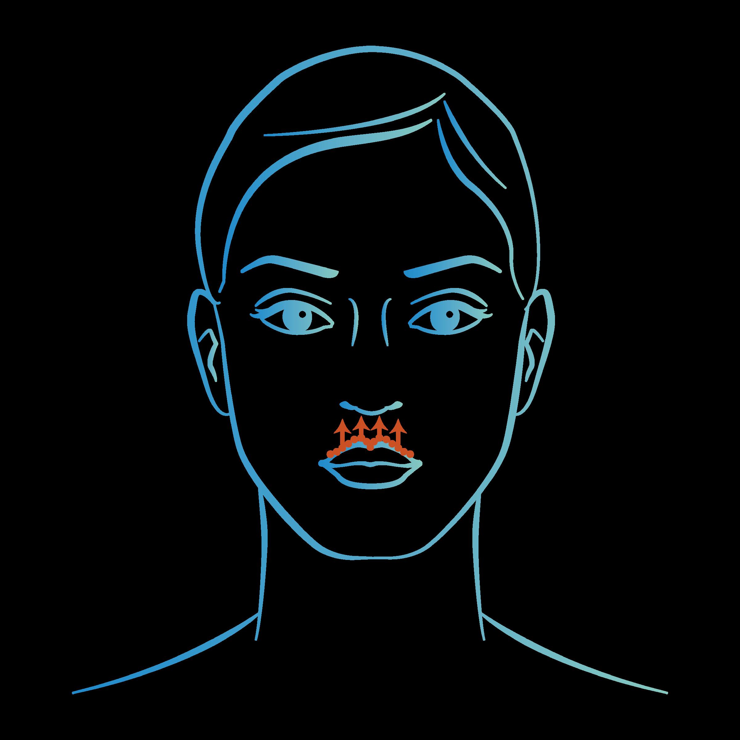 Injections acide hyaluronique bouche : lèvre supérieure
