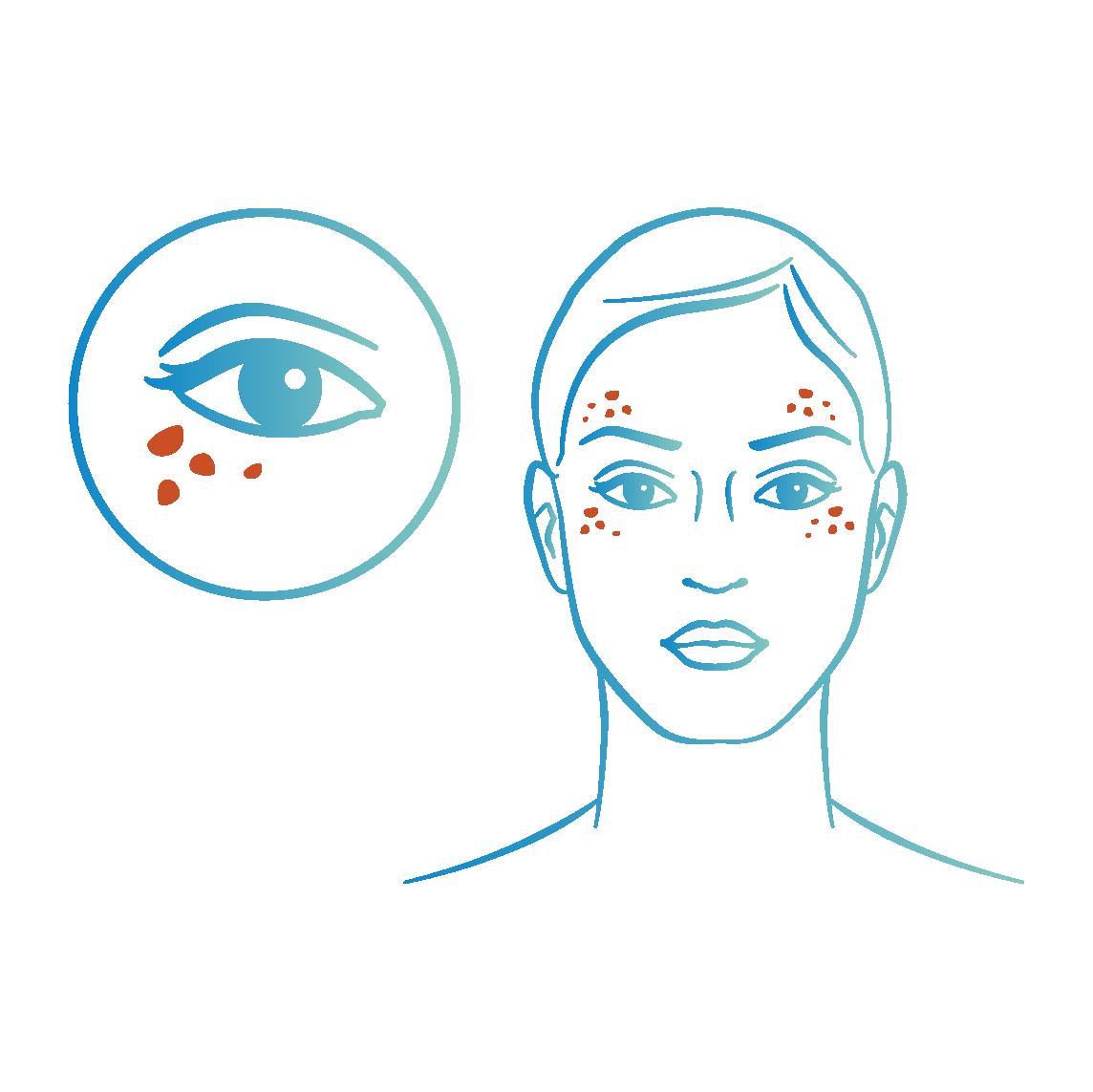 Lumière pulsée tâches pigmentaires