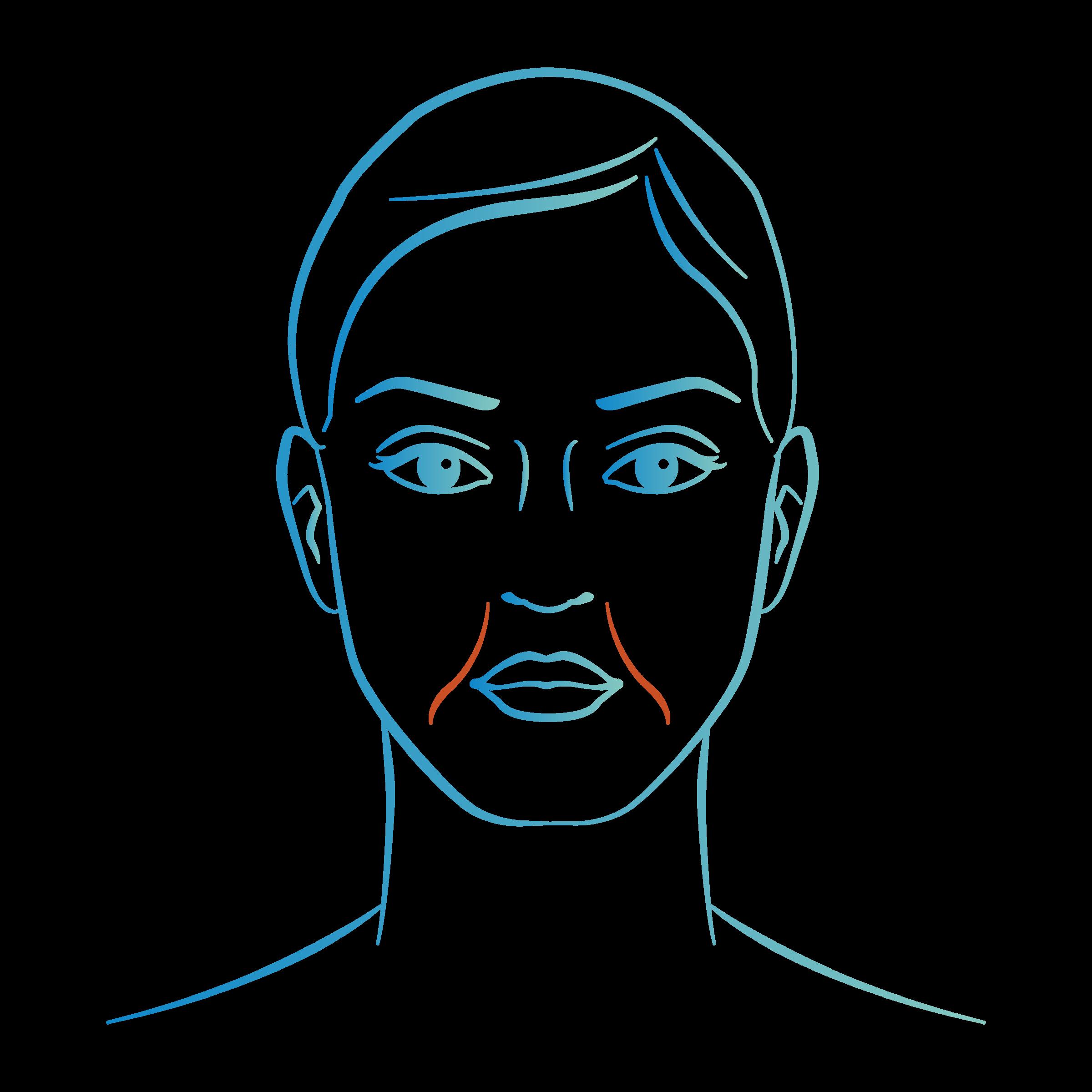 Médecine esthétique à Cannes : Injections d'acide hyaluronique sillons nasogeniens plis d'amertume