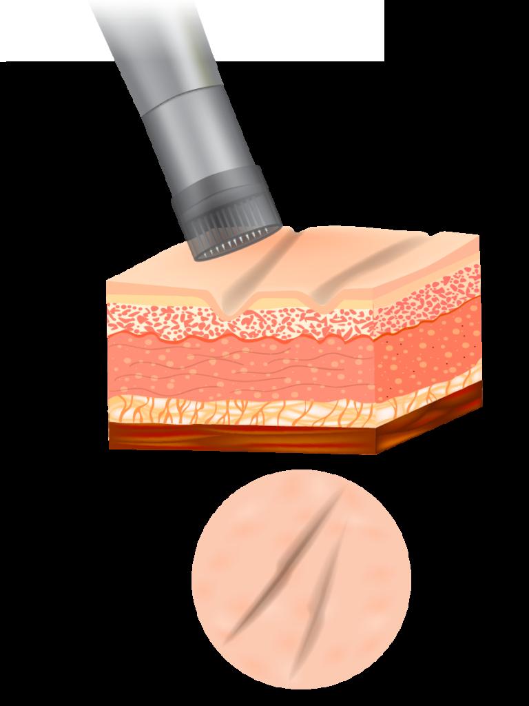 Microneedling processus : avant